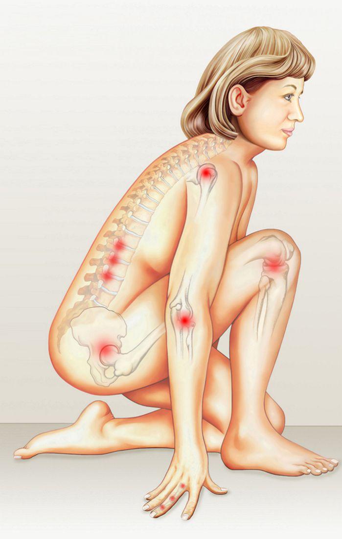 Gelenkentzündung.Kniende Frau